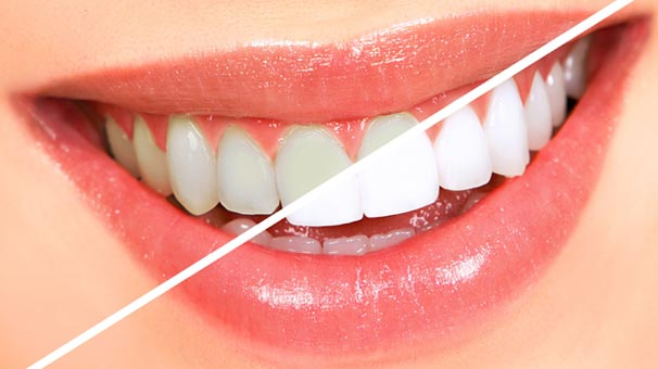 burbank family dental services Teeth Whitening and Bleaching